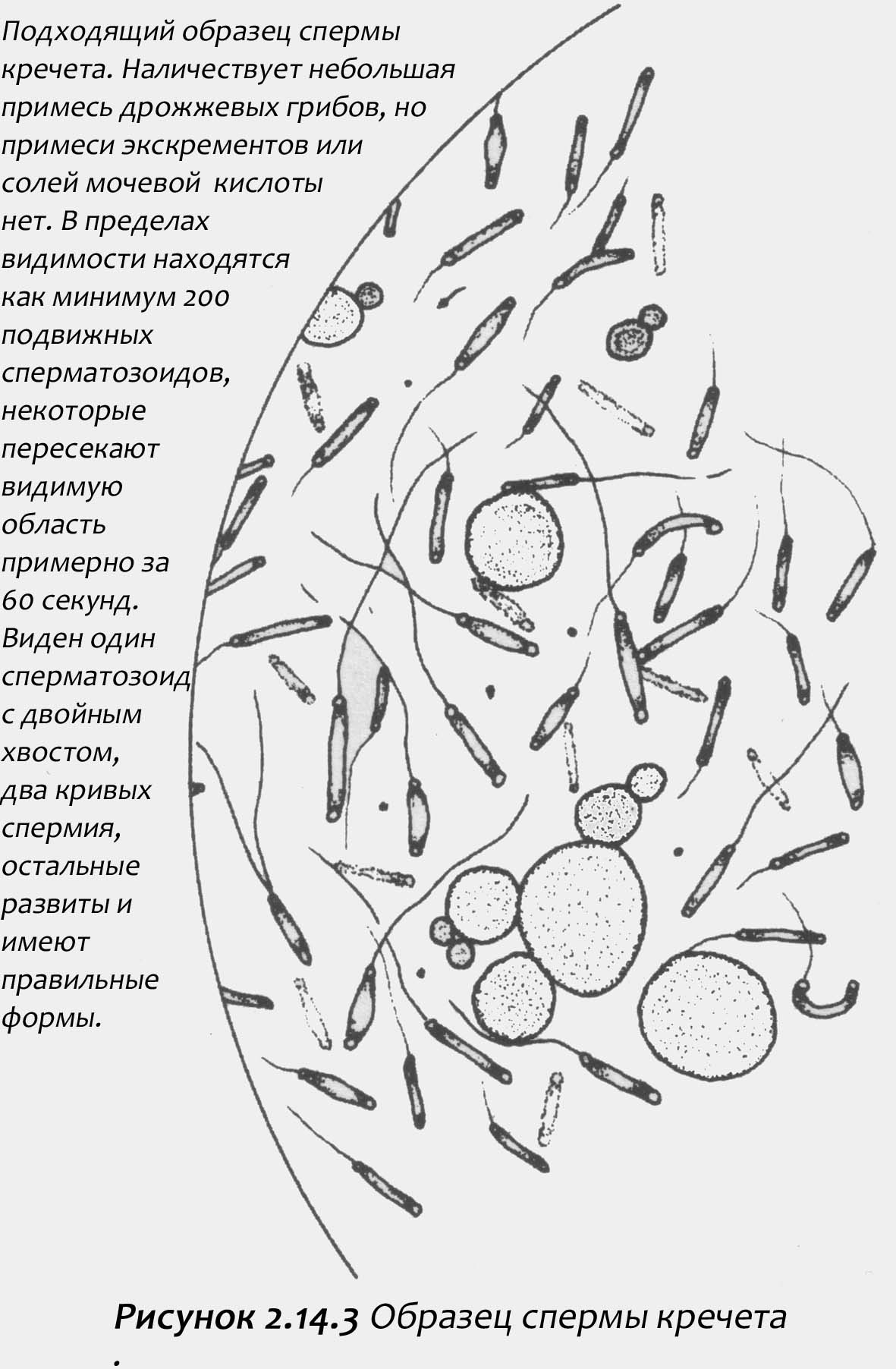 temniy-tsvet-spermi-u-muzhchini