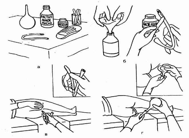 Как сделать клизму чистотелом
