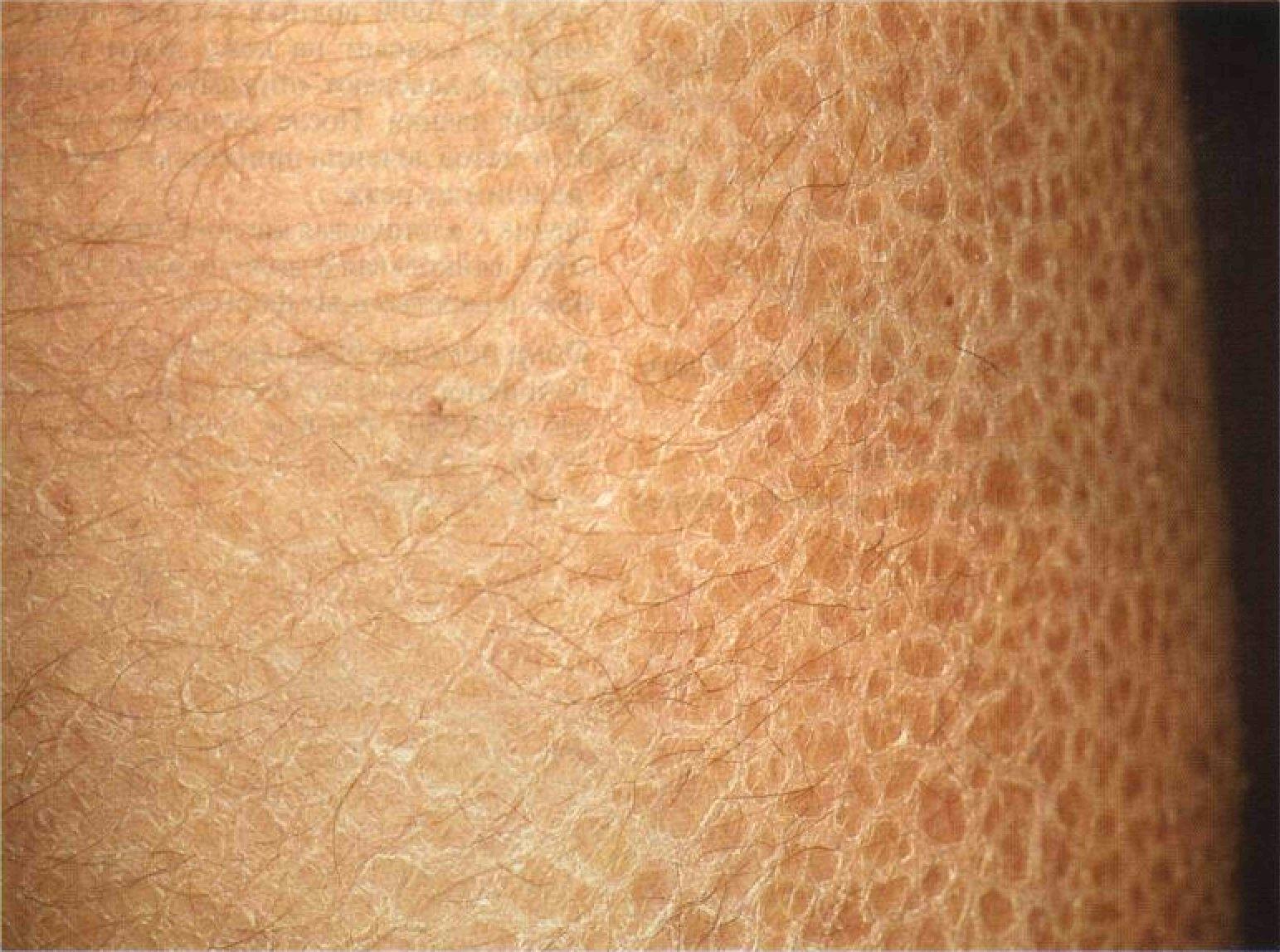 Шелушение кожи члена 6 фотография