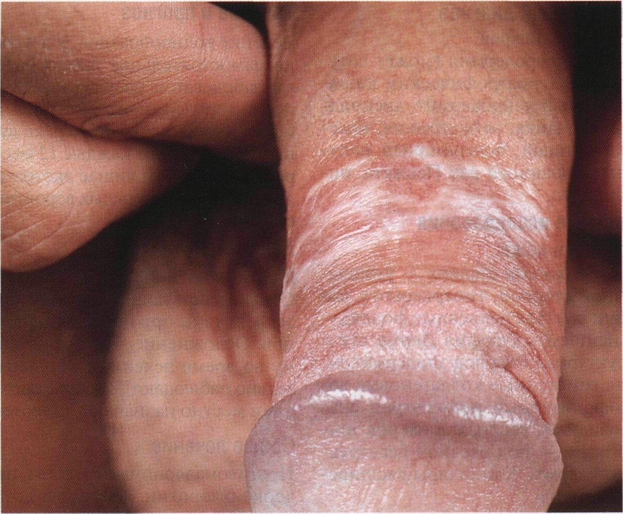 Рак кожи на пенисе фото 4 фотография