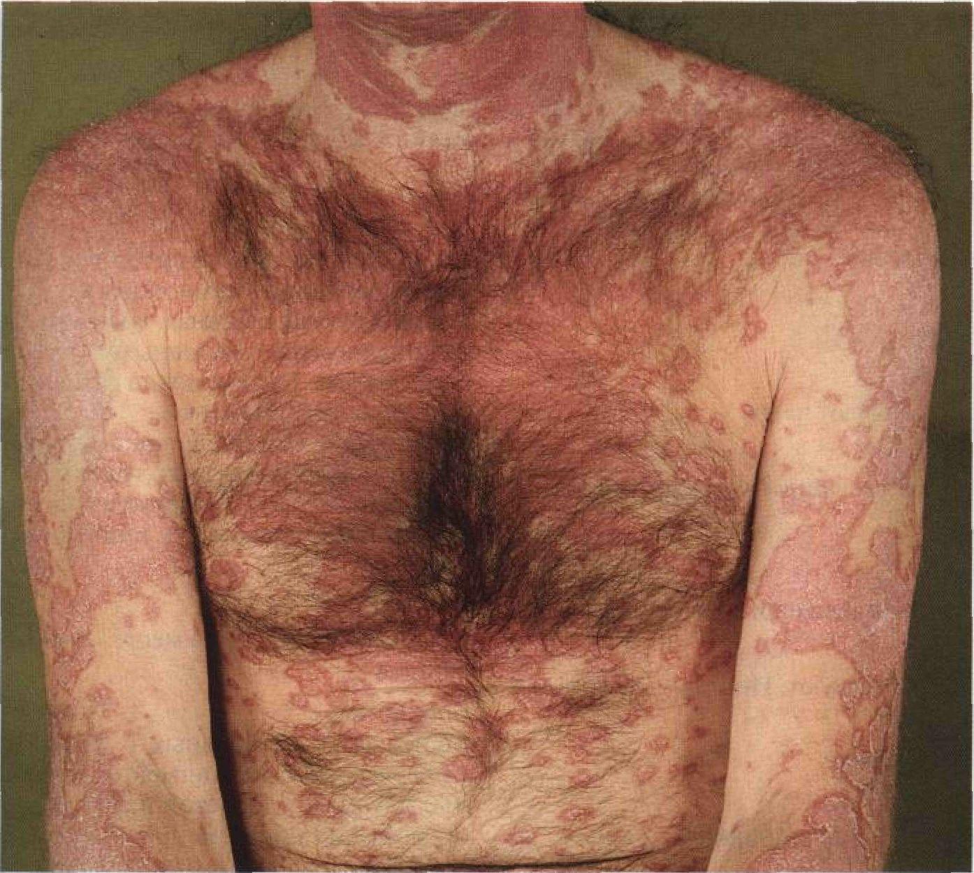 дистрофия кожи фото которым был