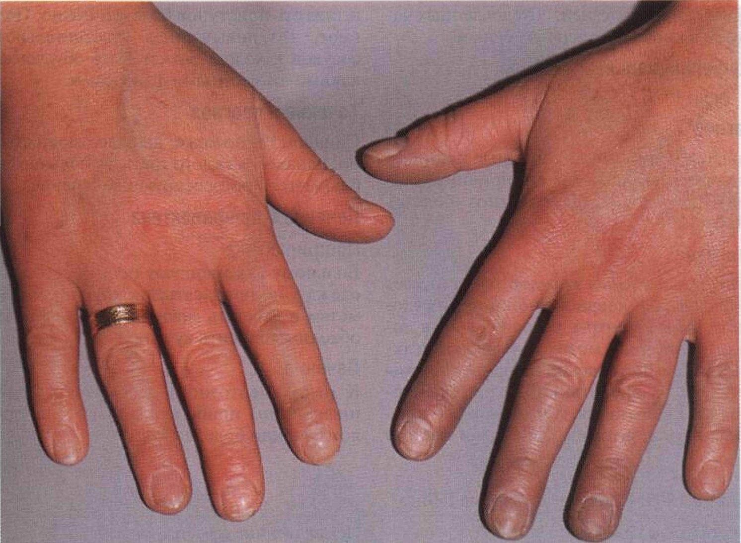 Цианоз половых губ 9 фотография