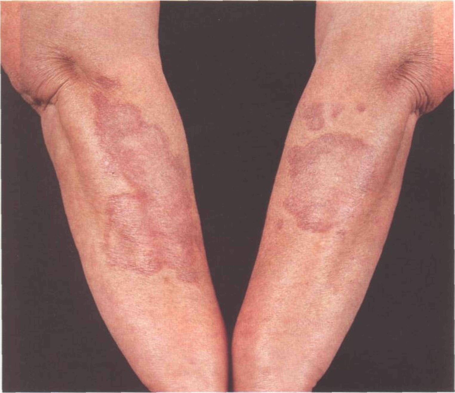 Псориаз на коленях симптомы и лечение (фото)