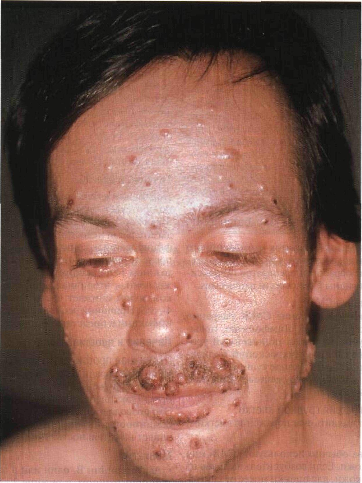 паразиты на лице человека