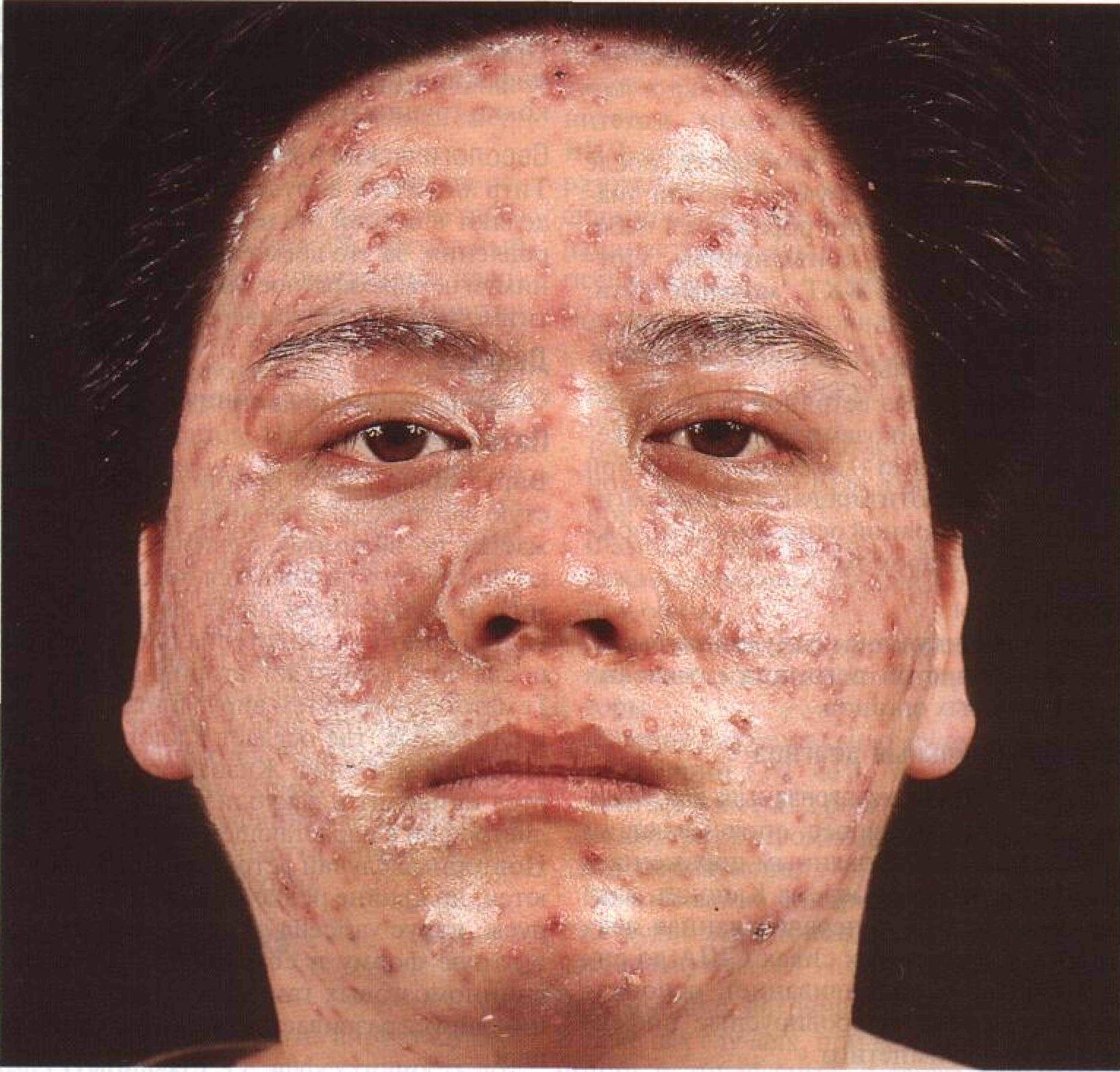 Сыпь на шеи и плечах и лице 12 фотография