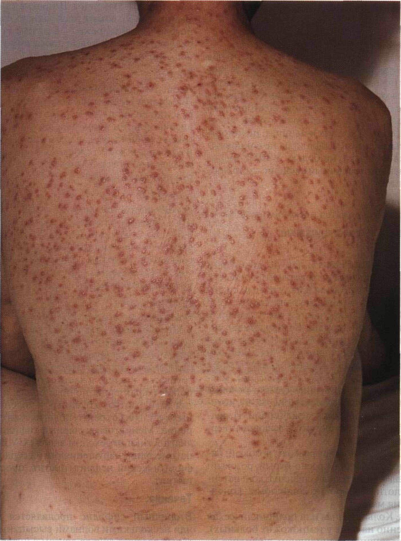 папулезная сыпь при сифилисе