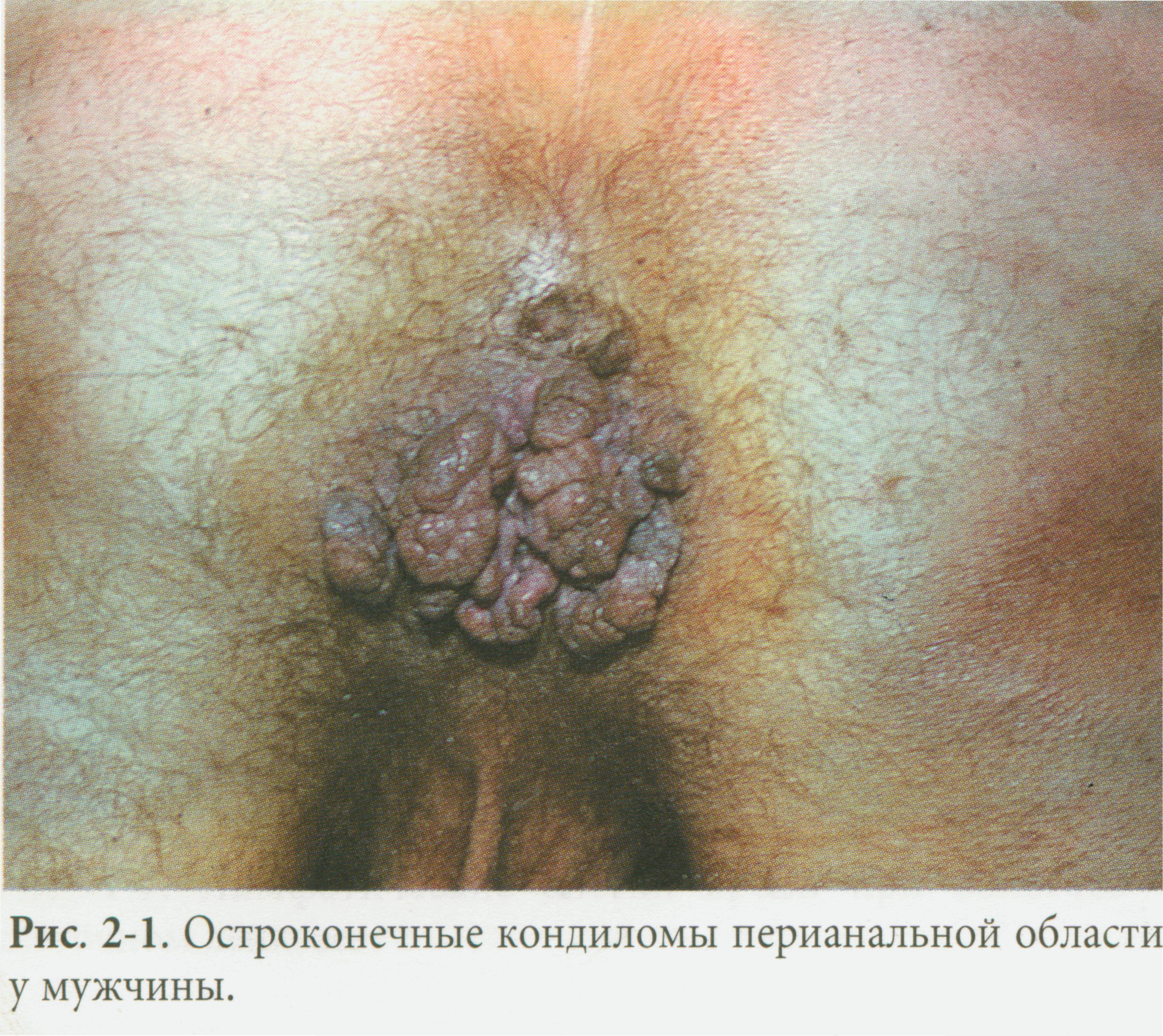 analniy-dermatit-lechenie