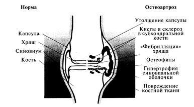 Массаж и лфк призаболевании суставов болит локтевой сустав чем лечить мази