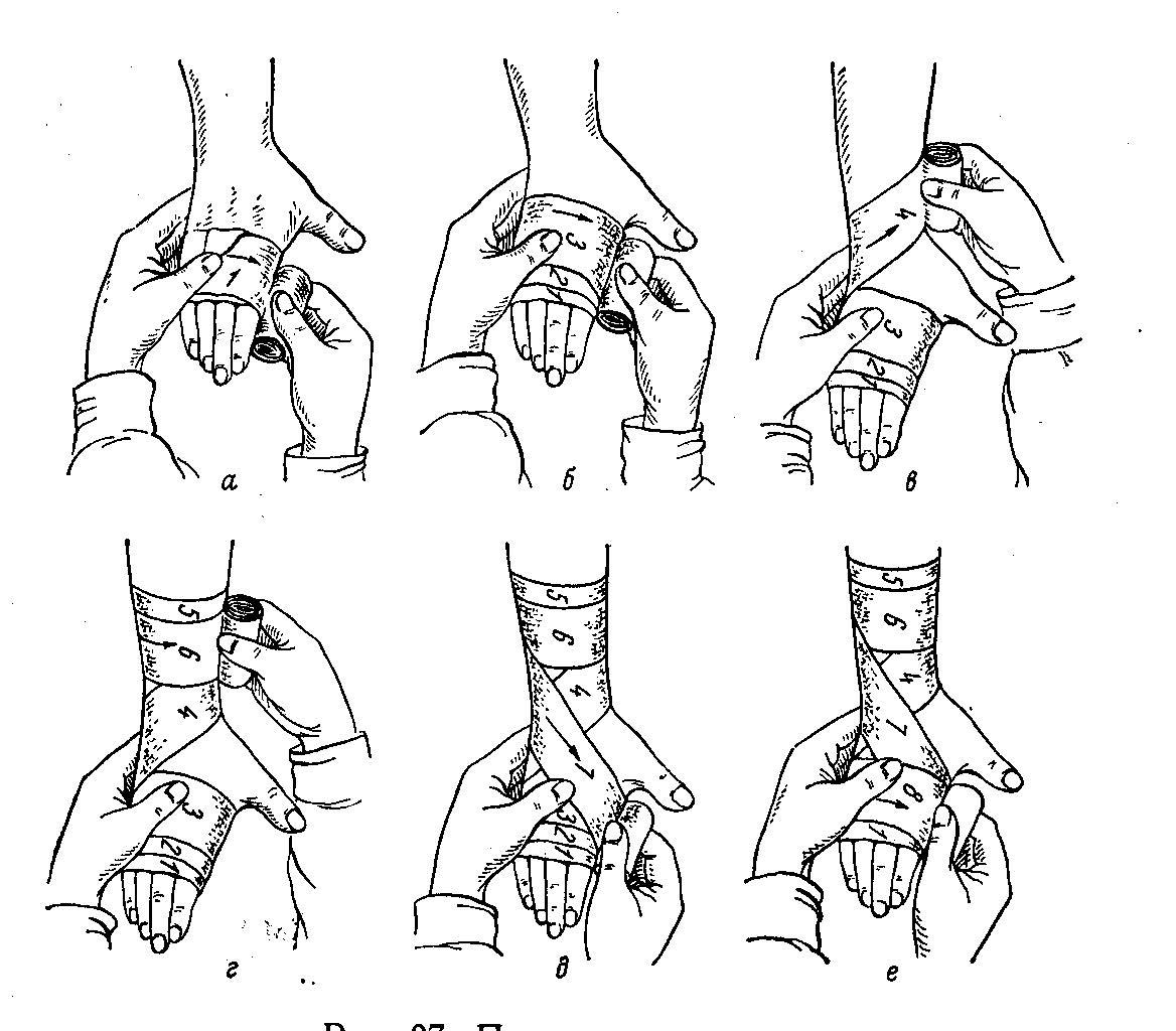 Правила наложения тугой повязки при растяжении 10