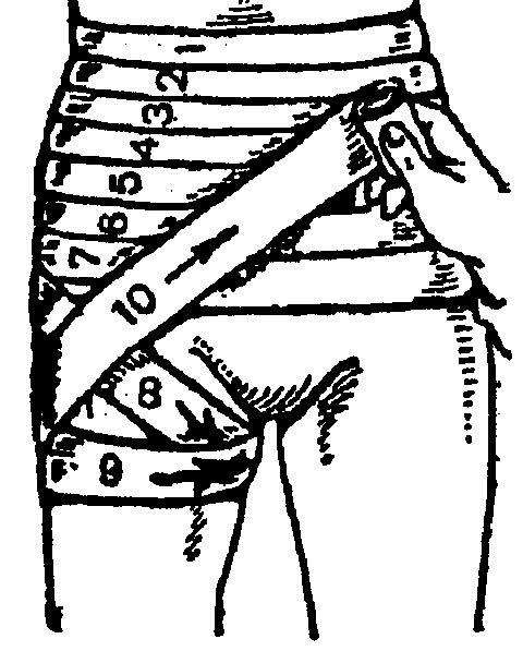 Изображение - Наложение повязки на тазобедренный сустав image022