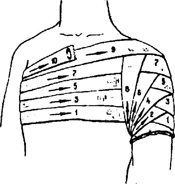 Наложение колосовидной повязки на область плечевого сустава метод попова восстановления коленного сустава при артрозе