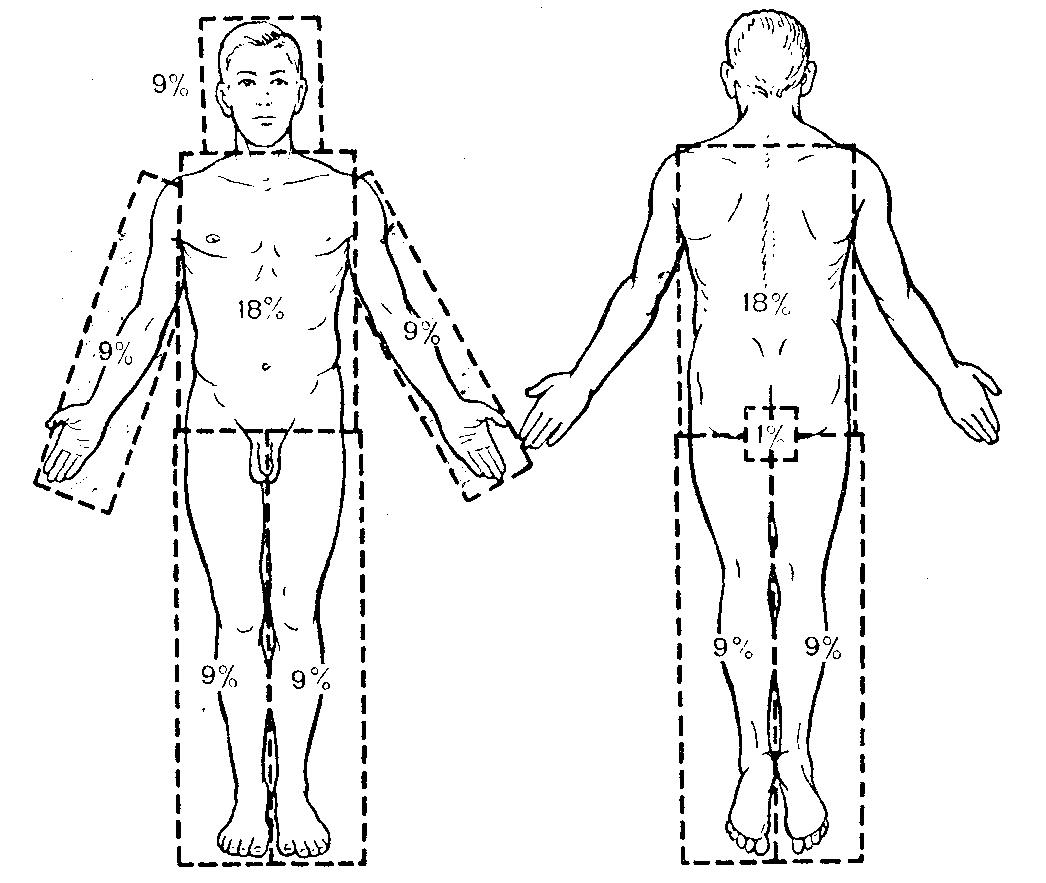 схема повреждений ткани при разных степенях ожога