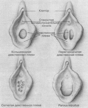 razrastanie-granulyatsionnoy-tkani-vlagalisha