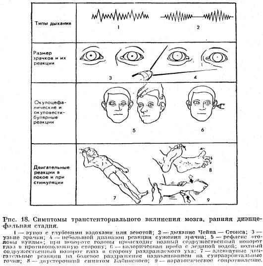вражденный парок развития головного мозга