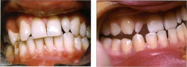 Реставрация передних молочных зубов