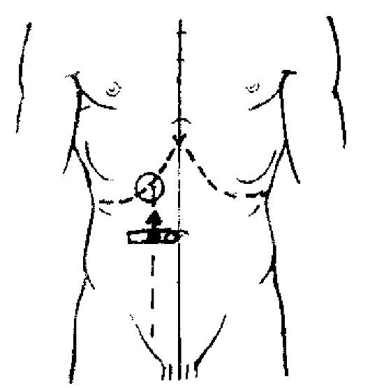 Строение сустава локтя