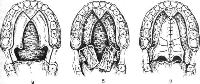 зубных рядов и всей