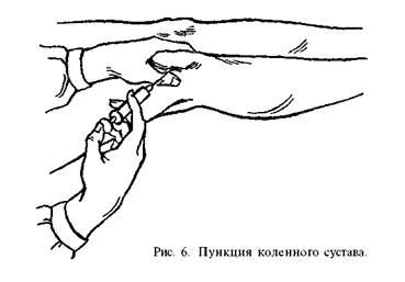 Пункция локтевого сустава суставные поверхности образованы