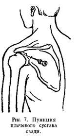 Пункция плечевого сустава картинки стафилококковая инфекция в крови болят суставы