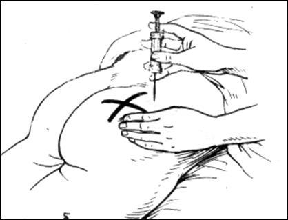 Внутримышечной инъекции в бедро в картинках