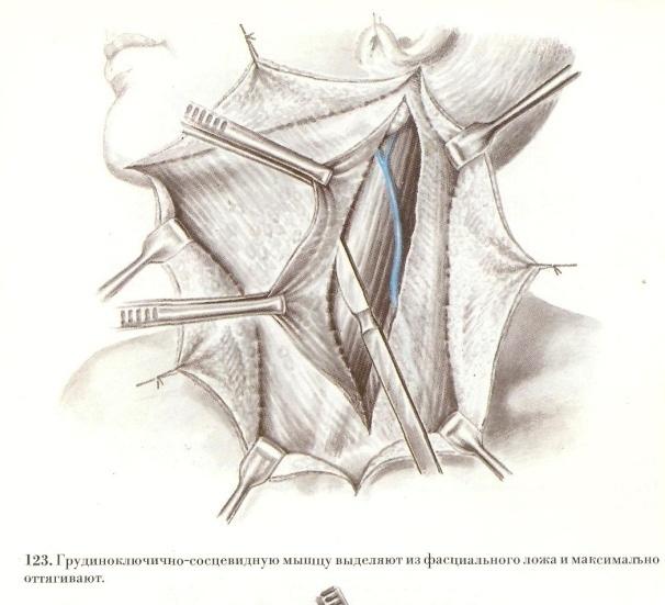 Опухоль грудино-ключично-сосцевидная фото