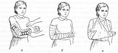 Как сделать косынку на руку при переломе фото