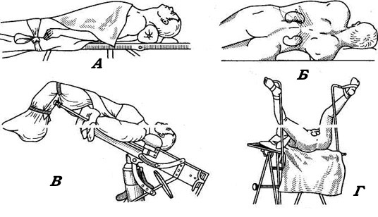 Способы укладки пациента на операционном столе
