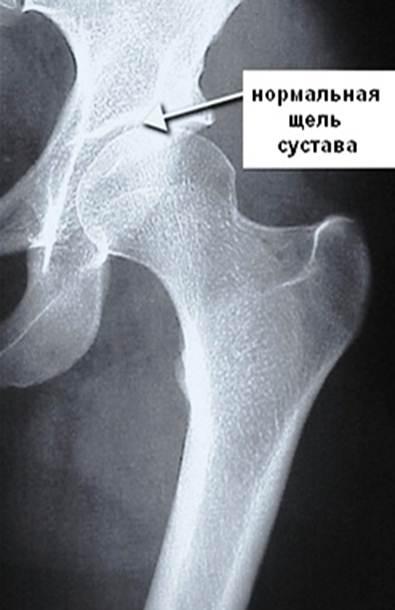 Как выглядит рентген тазобедренного сустава