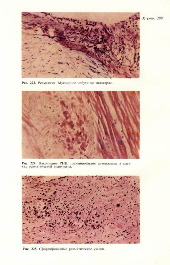 Тромбоэндартериэктомия