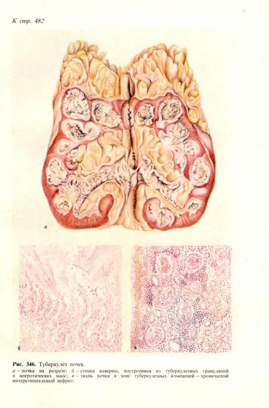 Гепатит с этиология патогенез клиника лечение профилактика