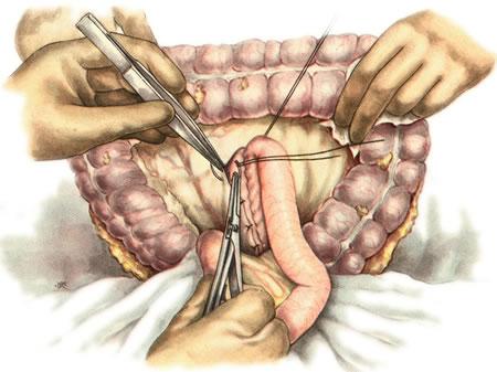 Упражнения после операции на кишечнике