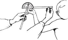 Угломер для определения подвижности суставов конечностей и пальцев мрт лучезапястного сустава в красноярске