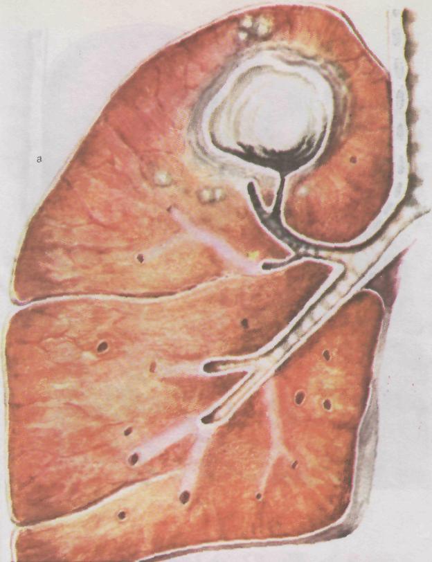 Пневмония переходит в туберкулез