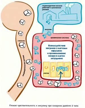 Лечение диабета по методике захарова