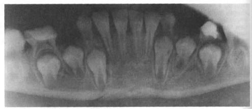 Рентген черепа ребенка с молочными зубами фото