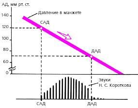 Лекарство от гипертонии гипертофорт отзывы