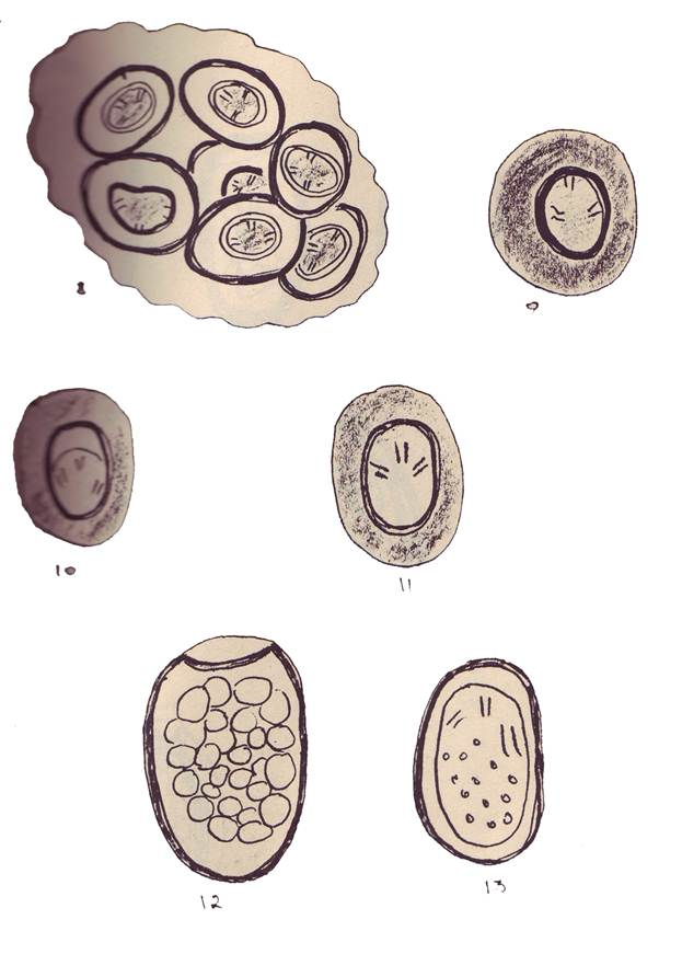 очистка от паразитов глистов