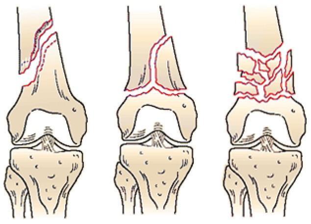 Внутрисуставных переломах по утрам боли в суставах