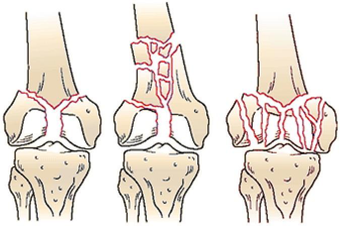 Внутрисуставных переломов упражнения на коленный сустав после перелома
