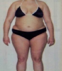ожирение виды ожирения