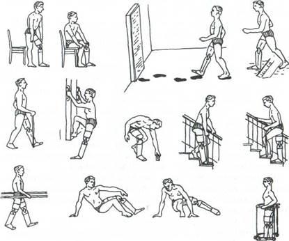 Сгибательная контрактура тазобедренного сустава после ампутации народное средство при артрозе коленного сустава