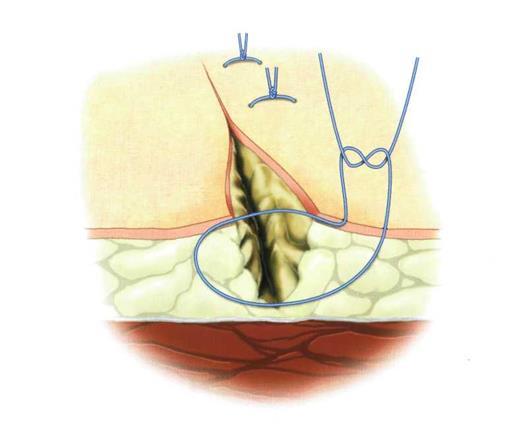 Сколько времени рассасываются нитки после операции