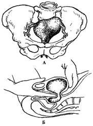 как пальпацией определить беременность