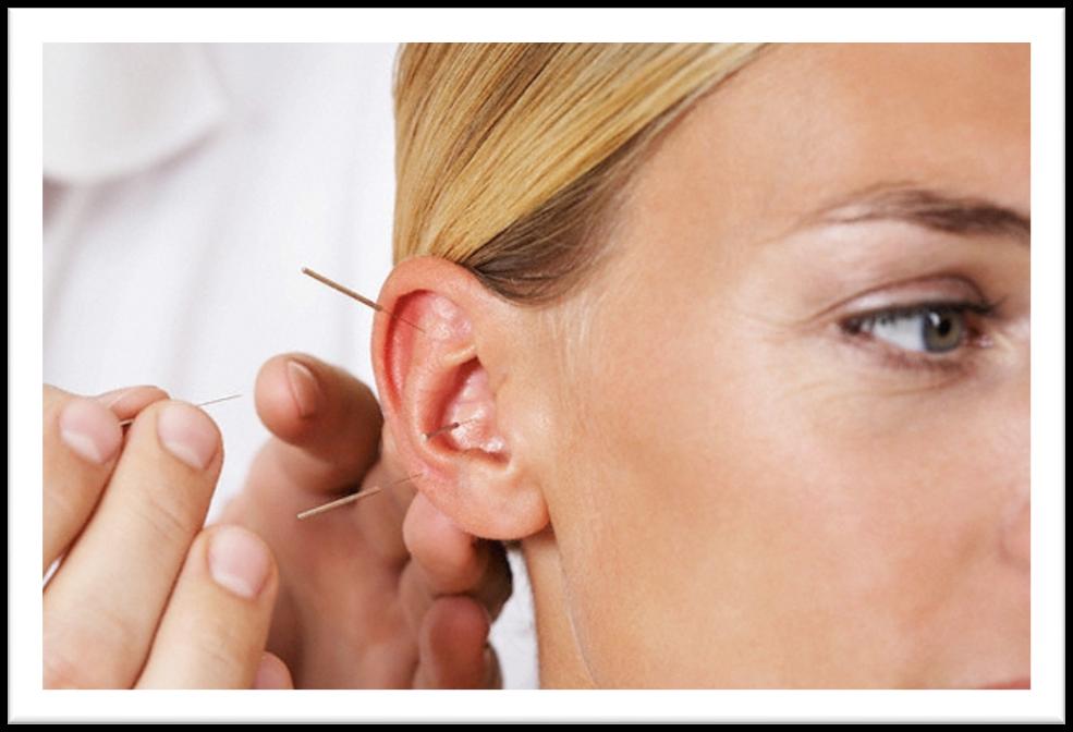 acupuncture an alternative medicine in western culture