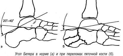 Бугорно-суставной какие лекарства принимать при артрозе локтевого сустава
