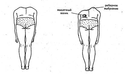 Мышечный валик на спине на стороне сколиоза