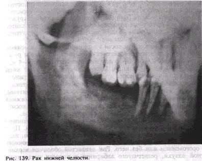 Рак дна полости рта прогноз