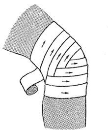 Изображение - Черепашья сходящаяся повязка на коленный сустав image034