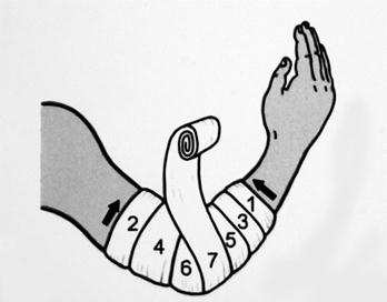 Изображение - Колосовидная повязка на плечевой сустав алгоритм image051