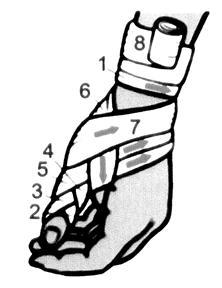 Изображение - Колосовидная повязка на плечевой сустав алгоритм image055